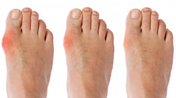 Bệnh Gout tiến triển như thế nào? Dấu hiệu là gì? - Kagawa