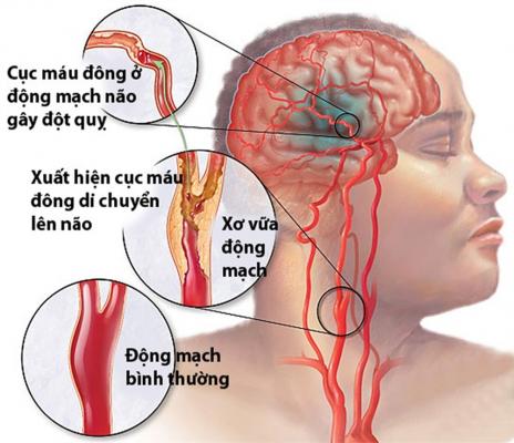 Tai biến mạch máu não - Phòng Khám Đa Khoa
