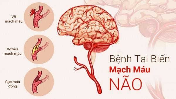 Tai biến mạch máu não là gì? Những điều bạn cần phải biết!